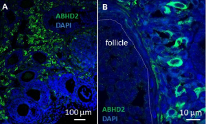 ABHD2 in Ovaries